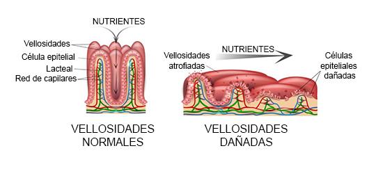 celiaquía, vellosidades intestinales dañadas. Celiapp.
